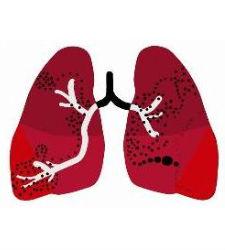 Un enfermedad respiratoria curada con una impresora 3D