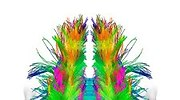 cerebro-neuronas.jpg
