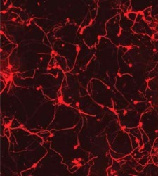 Pomadas contra la esclerosis múltiple