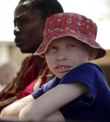 africa-albino-reuters.jpg