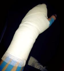 casillas-brazo-lesionado.jpg