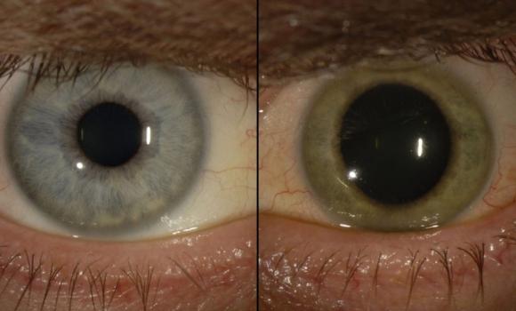 ebola-ojos-paciente-emory-eyes-center.jpg