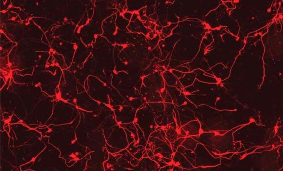 conexiones-neuronales-reuters.jpg
