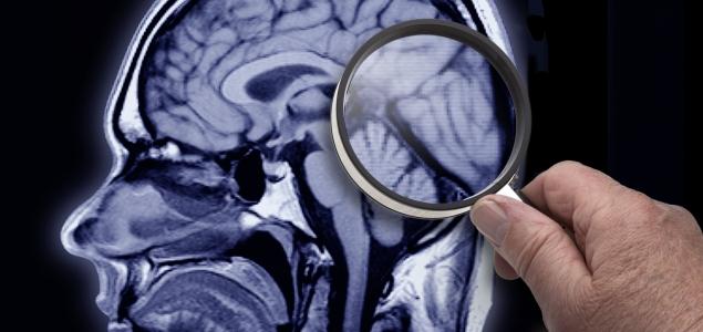 Cerebro-lupa-Alzheimer-635-GETTY.jpg