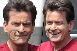 Charlie Sheen: marcas en su cara
