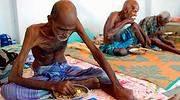 malnutricion.jpg