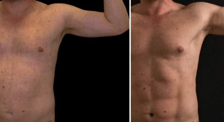 Alta definición en brazo y abdomen.