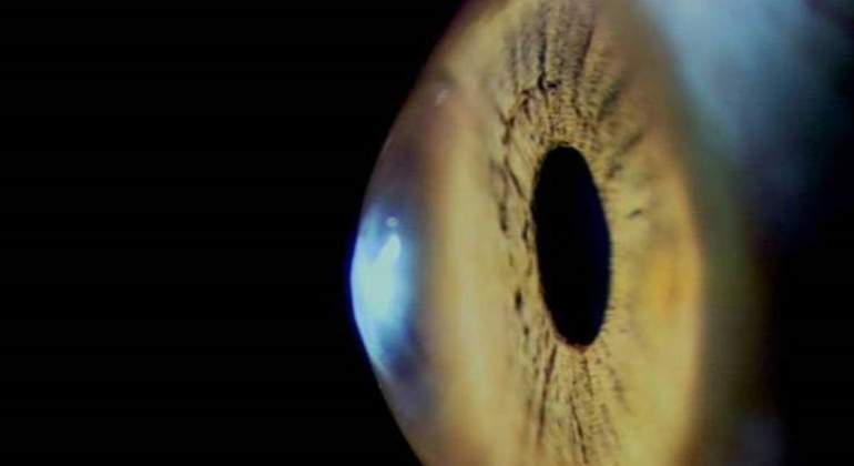 cornea-ojo-europa-press.jpg