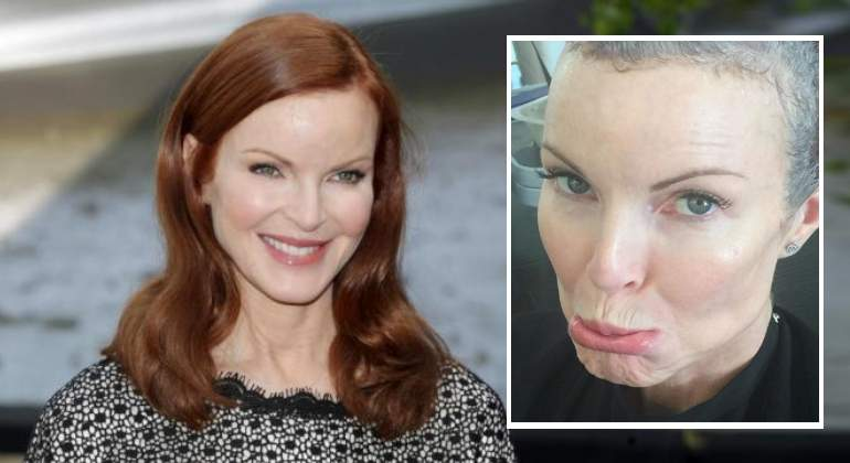 marcia-cross-cancer770.jpg