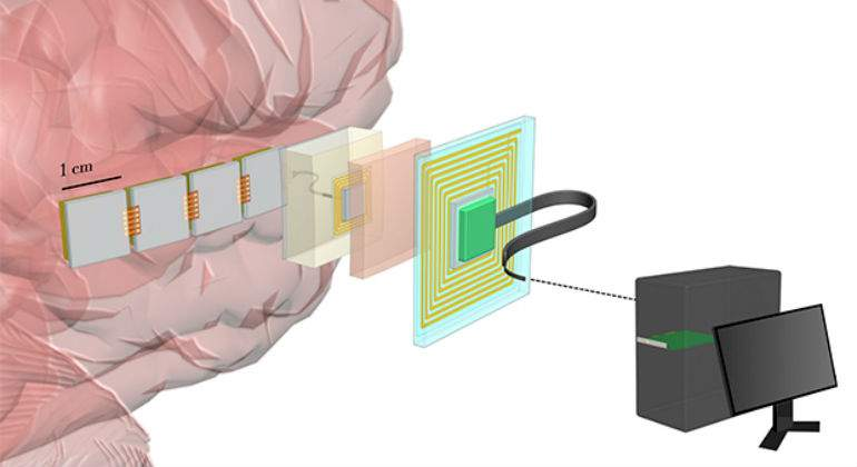 chip-neuronal.jpg