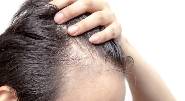 Implante de pelo en mujeres es efectivo