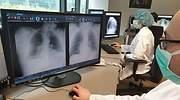 radigrafia salud