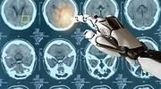 inteligencia-artificial-cancer.jpg