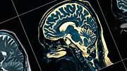 esquizofrenia-tomografia-dreamstime.jpg