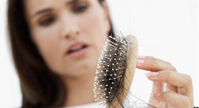 Resultado de imagen para pérdida del cabello