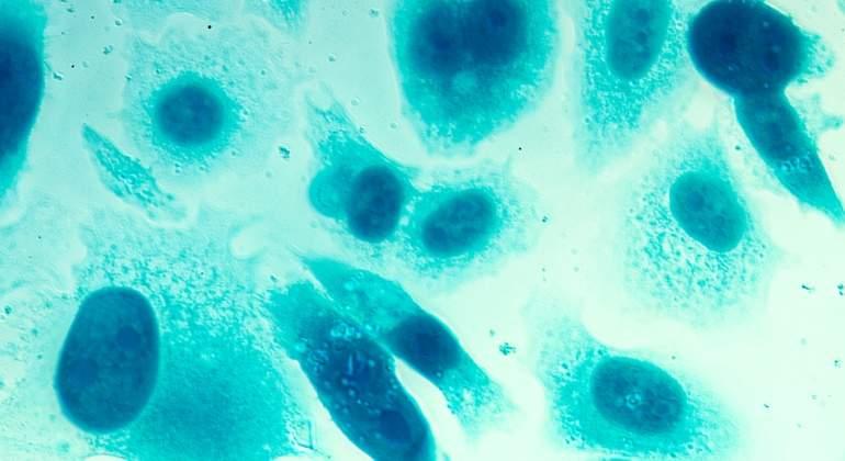 varias opciones de tratamiento para el cáncer de próstata