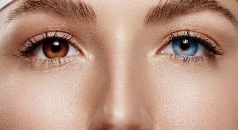 Image result for heterocromia
