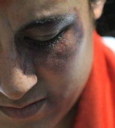 El PP reformará la Ley contra la violencia de género